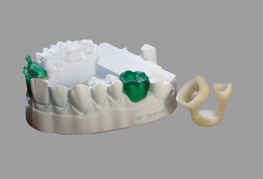 SLA-модель челюсти